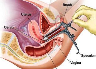 阴茎延长模拟图